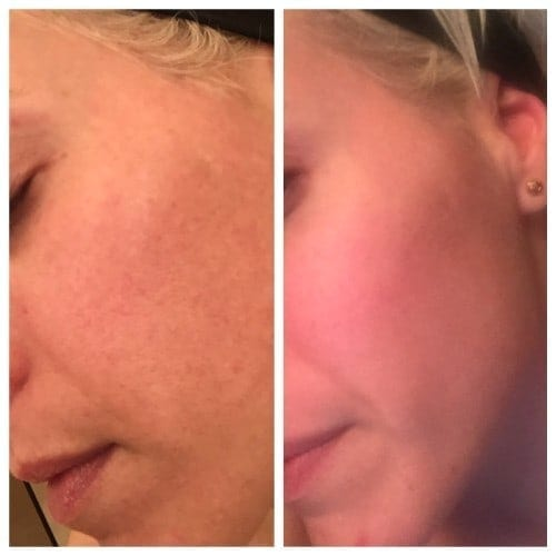 Halo laser treatment Boca Raton Before After