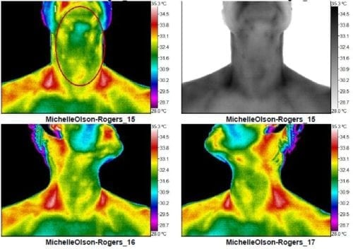 Thermography scan as a mom 02