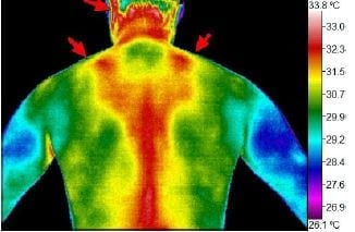 Thermography scan as a mom 03