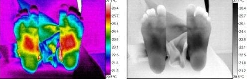 Thermography scan as a mom 04