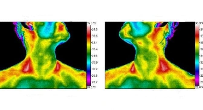 Why I Got a Thermography Scan as a Mom
