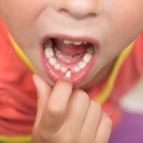 loose baby teeth