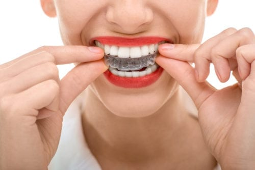 Boca orthodontics treatment